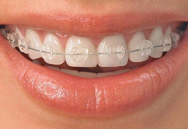 Tehnici dentare noi