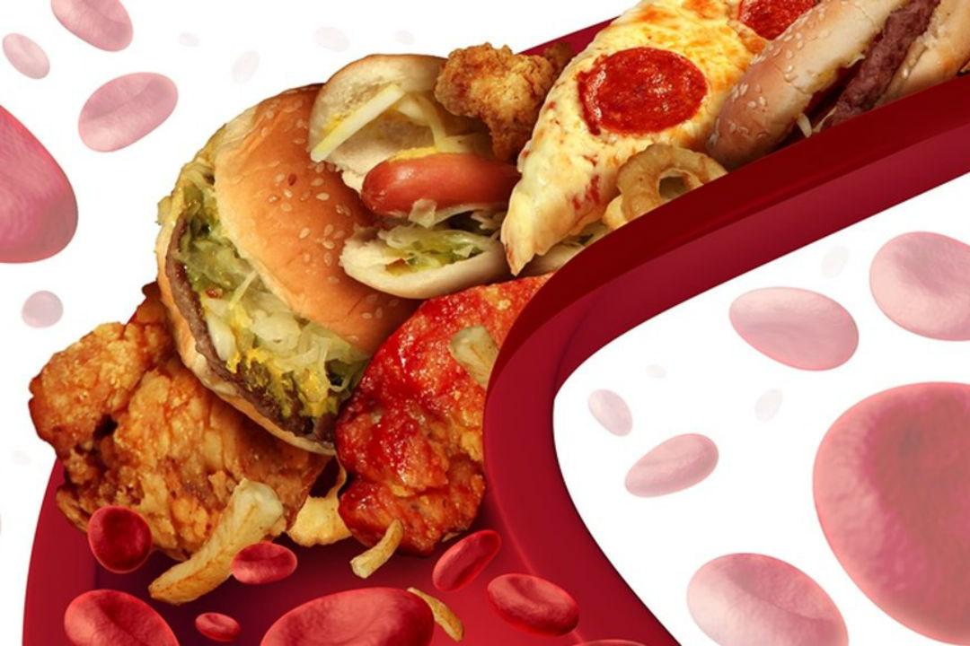 Ce faci cand ai colesterolul mare