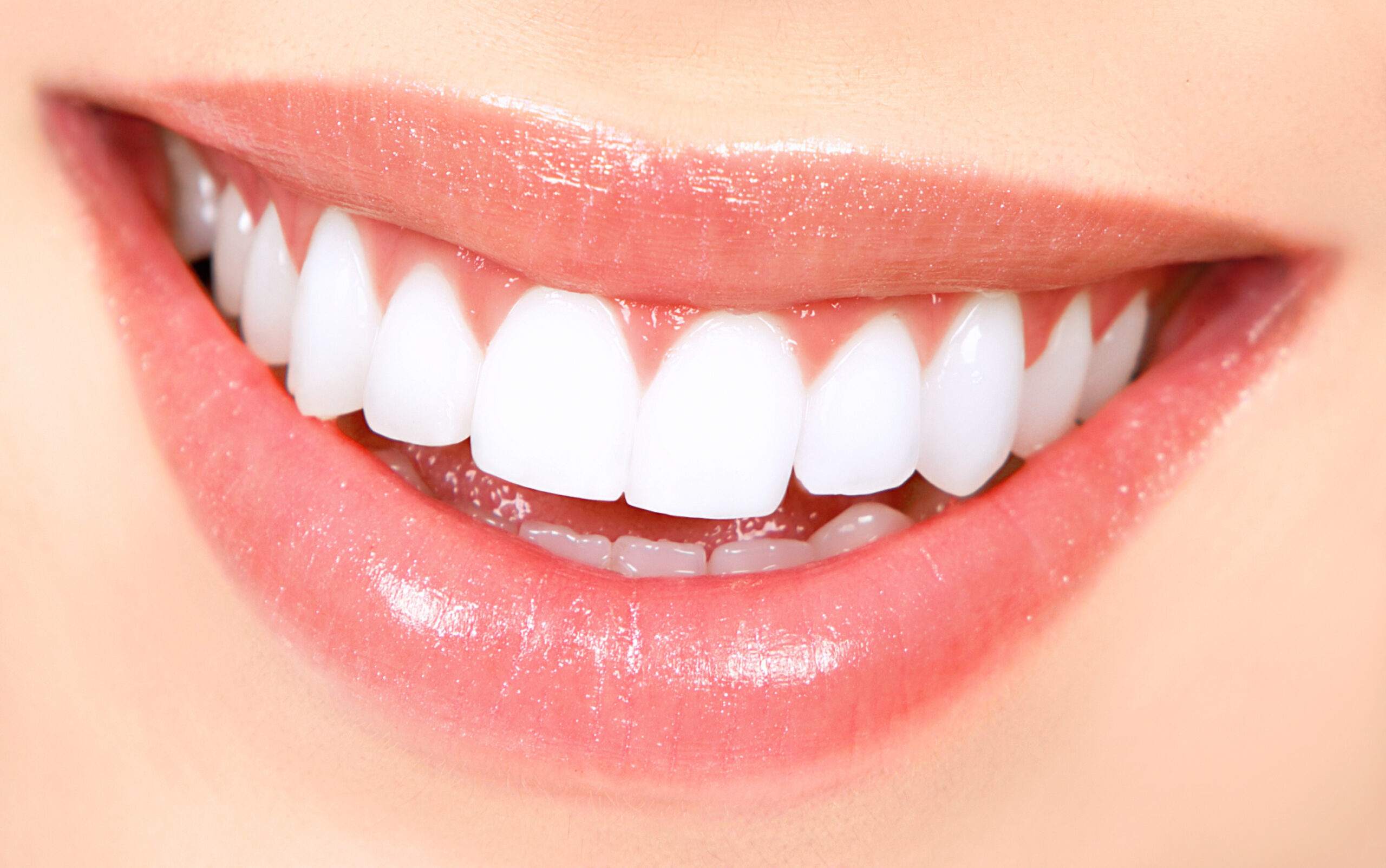 De ce sa alegi Cris Smile